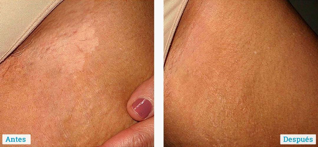 Resultados reales en pacientes con Fenadul y fototerapia